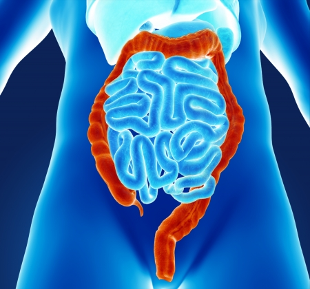 rectum cancer: Human colon