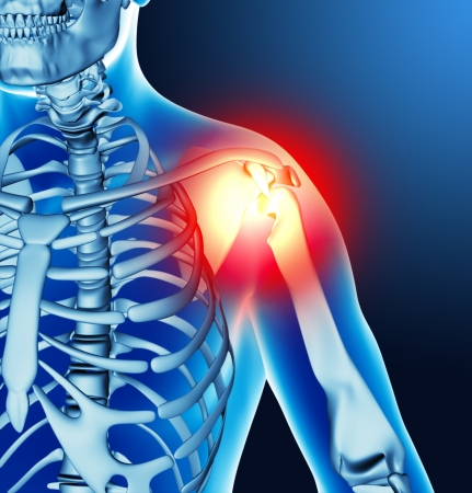 Arm joint pain photo