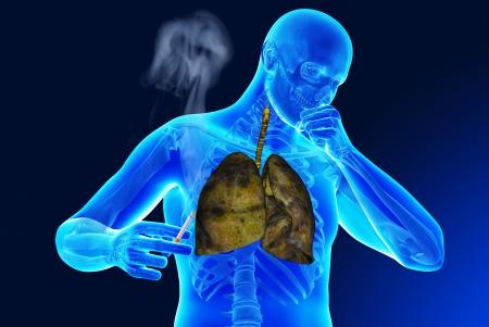 Zware sigaret rookt