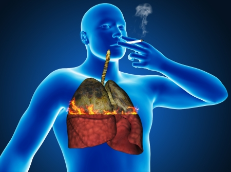 lung cancer: Heavy cigarette smoker