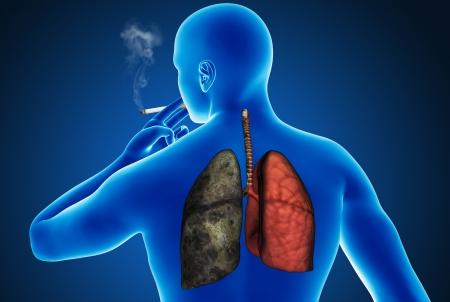 Heavy cigarette smoker photo