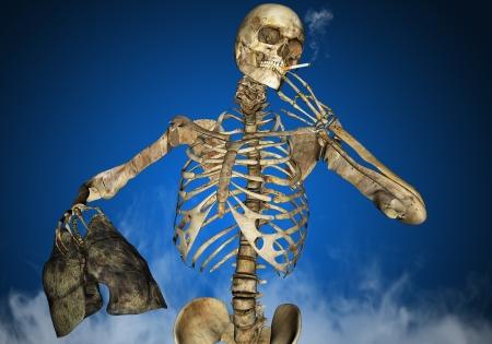 重いたばこ喫煙者
