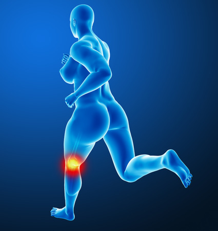 Woman joint pain photo