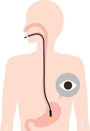 Stomach Camera Inspection