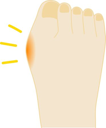 External anti-mother toe painful foot illustration 向量圖像