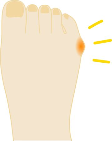 Internal anti-small toe painful foot illustration 写真素材 - 148238184