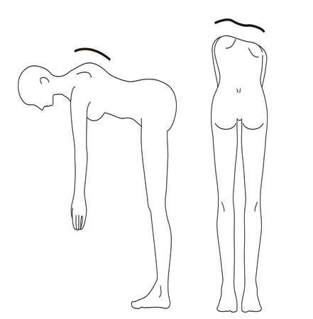 Female Medical Posture (Scoliosis Check) Beauty Naked Nude Full Body Back Illustration