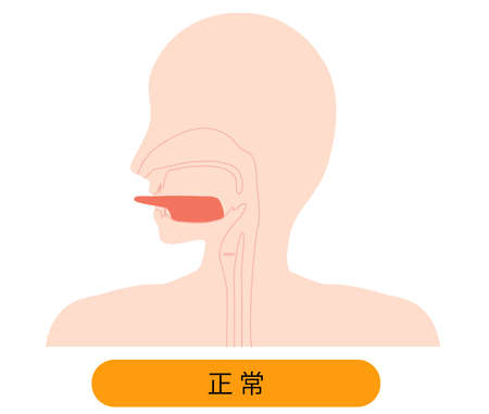 Because there is no tongue belt, it is an illustration depicting a normal state in which the tongue can stretch before.