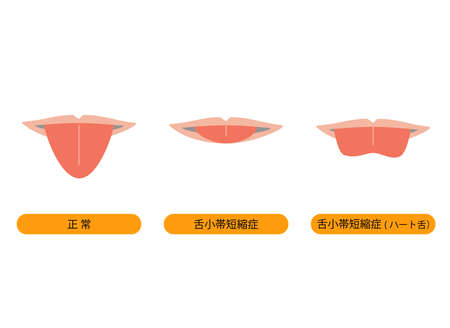 Illustration that becomes heart-shaped when tongue is stretched with tongue small band shortening disease