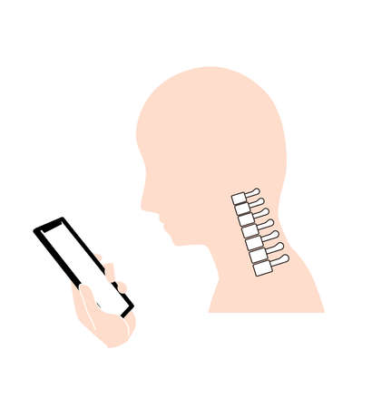 Straight neck (smartphone neck) Bone image