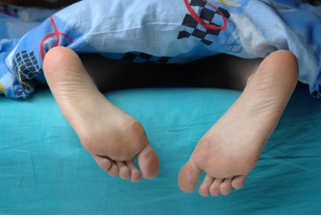 female soles: Female feet with callus under the blue blanket Stock Photo