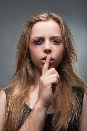 wife beater: Half-length portrait of scared fair-haired young girl with the black eye wanted but cannot tell us the truth  Isolated on grey background Stock Photo