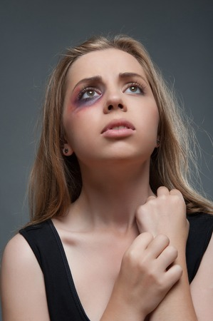 wife beater: Half-length portrait of frightened young girl with black eye looking up and praying  Isolated on grey background Stock Photo