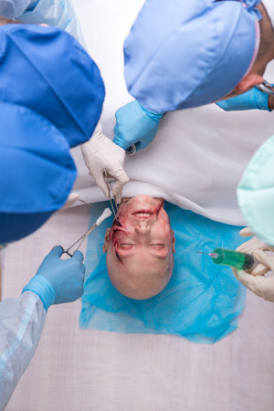 scalpels: Half-length portrait of the group of doctors wearing medical dress and disposable gloves operating the victim of the car accident using scalpels scissors and tweezers. Top view