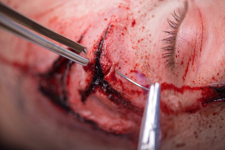 gash: Selective focus on the terrible gash on the face of woman getting into the accident which is operated by the surgeon