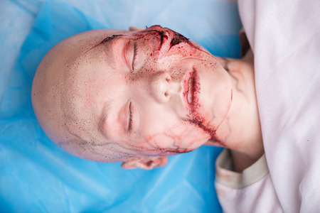 gash: Woman getting into the accident having a big terrible gash on her face lying on the operating table. Top view