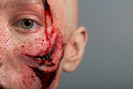 gash: Poor bald woman getting into the accident having a big terrible gash on her face isolated on grey background