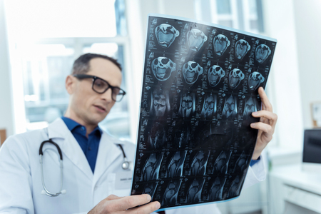 Lets see what we have. Professional neurologist holding a mri scan while dealing with brain tumor Stock Photo