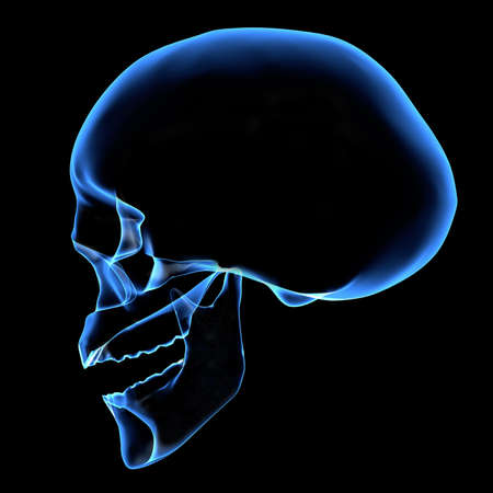 ghostly: X-ray of a head Stock Photo