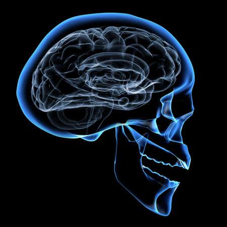 X-ray immagine di una testa umana con cervello