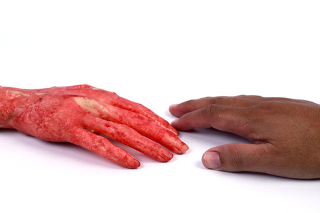 Bloody hands photo