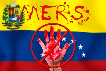 bandera de venezuela: Concepto espect�culo epidemia MERS parada mano Virus bandera de Venezuela.