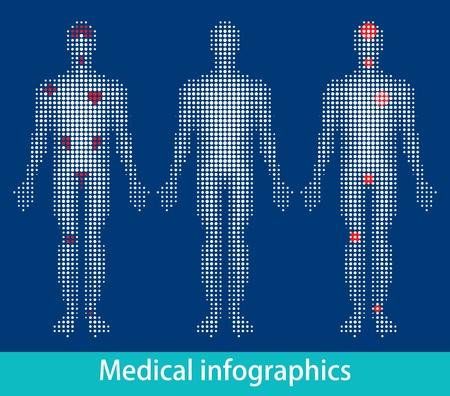 articulaciones: Informaci�n m�dicas-gr�ficos vectoriales eps