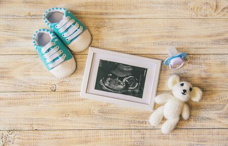 Ultrasound picture of a baby's photograph and accessories. Selective focus. child. Standard-Bild