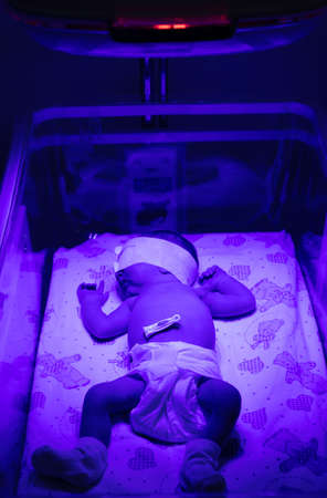 Newborn baby under an ultraviolet lamp. Selective focus. people.