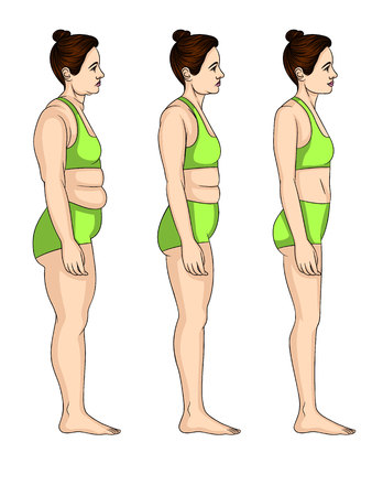 Vector colorful illustration of three levels lose weight. Young attractive woman standing in profile before and after body transformation Stock Illustratie