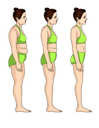 Vector ilustración colorida de tres niveles para perder peso. Mujer atractiva joven de pie de perfil antes y después de la transformación del cuerpo