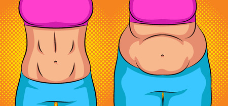 Color vector pop art style  illustration girl before and after weight loss. Flat stomach vs the fat belly. Concept poster about healthy eating and lifestyle. Sports female figure after getting slim Standard-Bild - 121363929