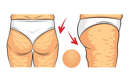 Color vector illustration of cellulite problem. Female hips rear view and side view. Fat deposits on the female buttocks. Hip with orange peel macro view Иллюстрация