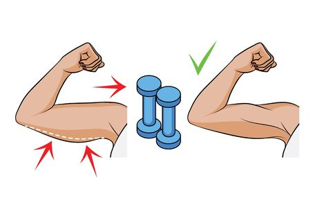 Color vector illustration of a problem of overweight in women. Female hands side view. Body fat on female triceps. Before and after dumbbell exercises