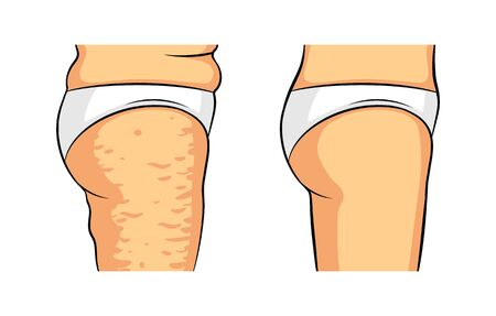 Color vector isolated illustration. Female legs side view. Cellulite on the hips. Female hips before and after losing weight. Caring for the beauty of the skin.