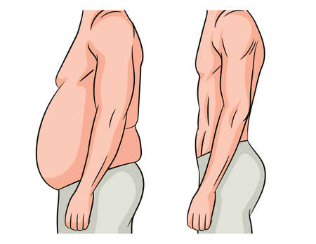 Color vector illustration isolated on white background. Man before and after losing weight. Male body transformation. The man lost extra pounds and lost weight at the waist.