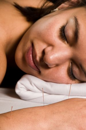 Woman getting an acupuncture treatment in a spa photo