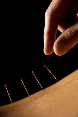 tratamientos corporales: Mujer recibiendo un tratamiento de acupuntura en un spa