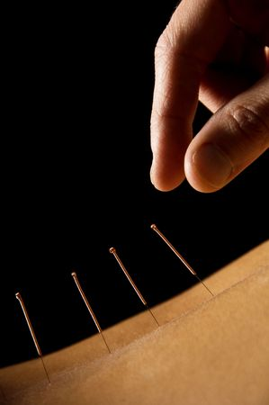 treatment: Woman getting an acupuncture treatment in a spa Stock Photo