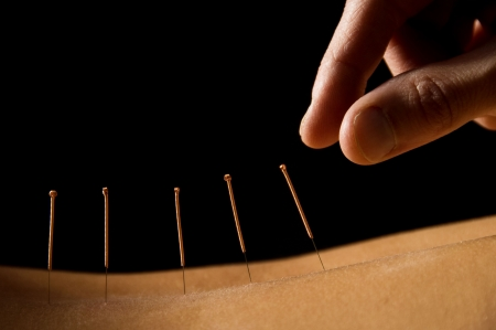 Woman getting an acupuncture treatment in a spa Imagens