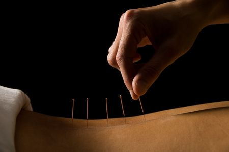 acupuncture: Woman getting an acupuncture treatment in a spa Stock Photo