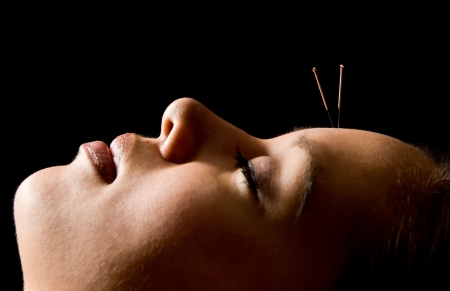 Woman getting an acupuncture treatment in a spa Stock Photo