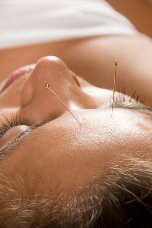 acupuntura china: La mujer recibe un tratamiento de acupuntura en un spa  Foto de archivo