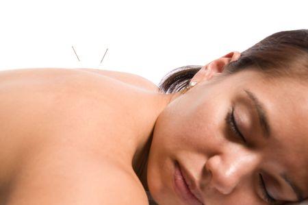 acupuntura china: Mujer obtener un tratamiento de acupuntura en un spa