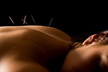 Frau erhalte eine Akupunktur-Behandlung in einem Spa - Standard-Bild - 3071684