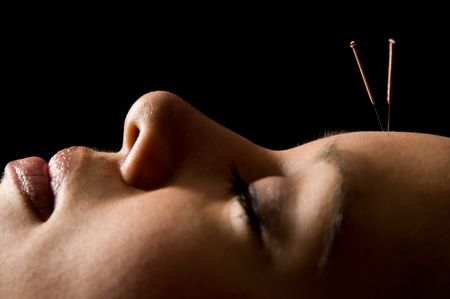 Woman getting an acupuncture treatment in a spa Stock Photo - 3080713