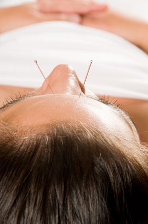 Woman getting an acupuncture treatment in a spa Stock Photo - 3080716