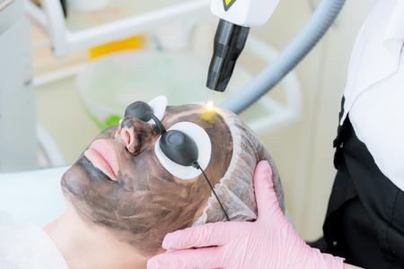 Close-up carbon gezichtspeeling procedure. Laserpulsen reinigen de huid van het gezicht. Hardware cosmetologie behandeling. Proces van fotothermolyse, verwarmen van de huid, afpellen van laserkoolstof. Gezichtsverjonging. Stockfoto