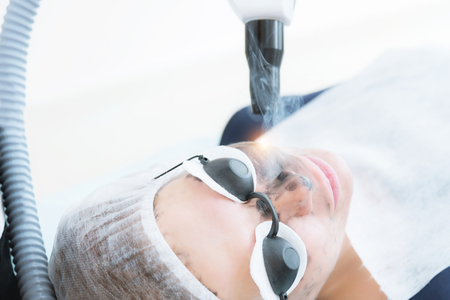 Close-up carbon face peeling procedure. Laser pulses clean skin of the face. Hardware cosmetology treatment. Process of photothermolysis, warming the skin, laser carbon peeling. Facial skin rejuvenation. Archivio Fotografico