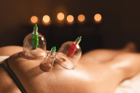 Close-up of three wet caps for vacuum massage installed on the young girls buttock against the background of burning candles in a dark room